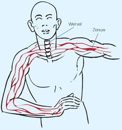 schouder artrose symptomen